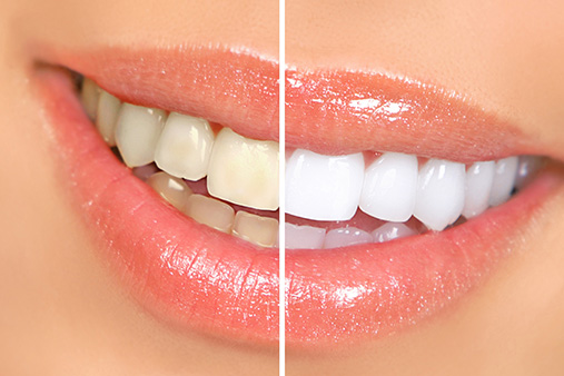 alliance Cosmetic & Teeth Whitening