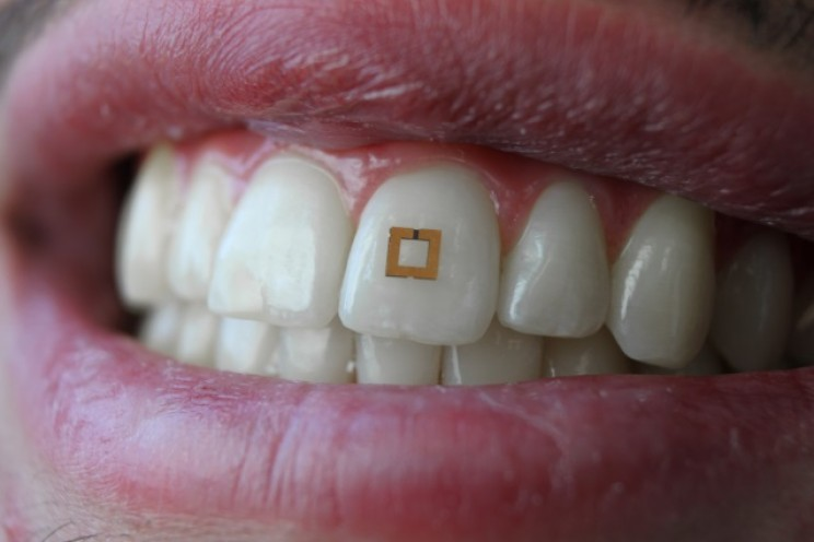 Scientists_Develop_Tooth_Sensors_that_Can_Monitor_Your_Diet_I_resize_md